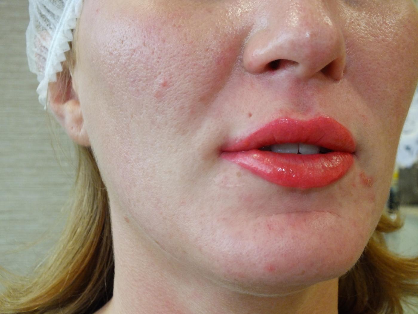 Permanent Lip Blush by Naomi O'Hara