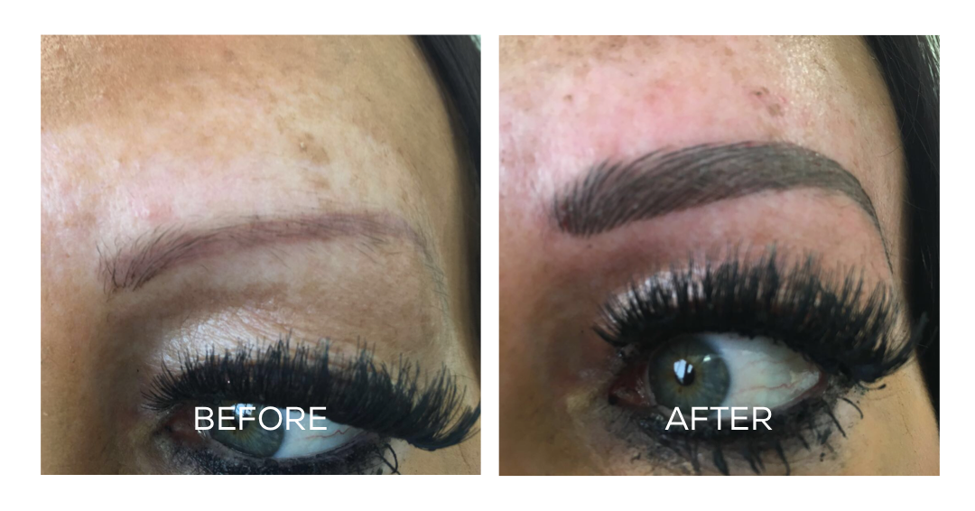 Correction & Removal
