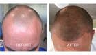 scalp pigmentation tattoo portsmouth