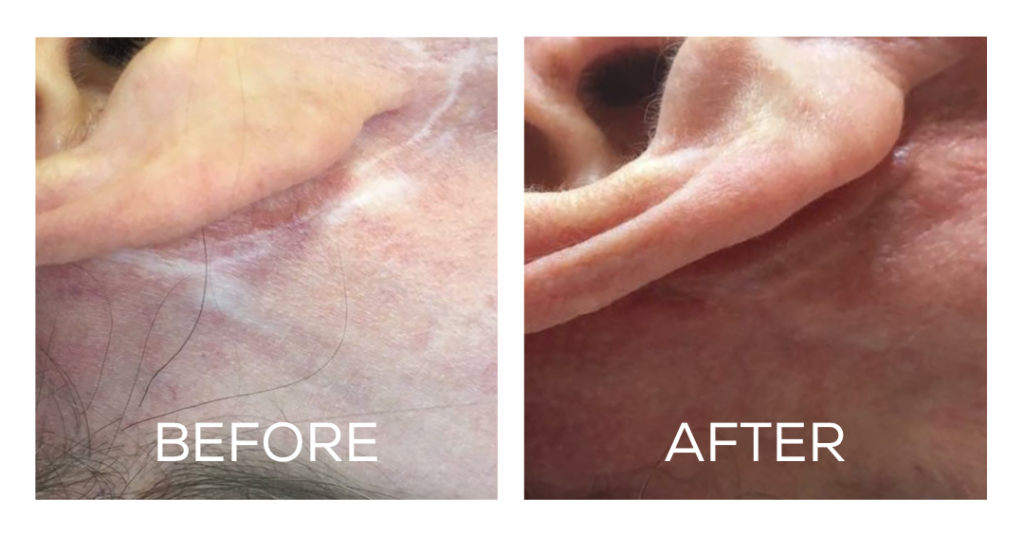 Permanent Natural Scar Removal