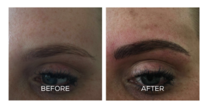 How Long Does Microblading Eyebrows Last?