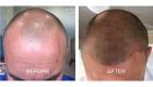 scalp pigmentation tattoo portsmouth