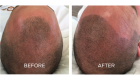 scalp pigmentation tattoo portsmouth 2