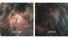 scalp pigmentation tattoo portsmouth 3