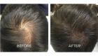 scalp pigmentation tattoo portsmouth 4
