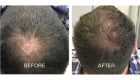 scalp pigmentation tattoo portsmouth 5