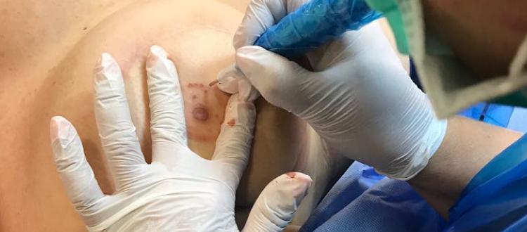 Areola Medical Tattoo